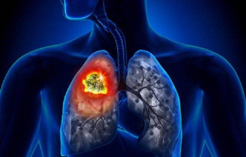 Ituiutaba: casos de tuberculose confirmados no ano chega a 9 e preocupam autoridades